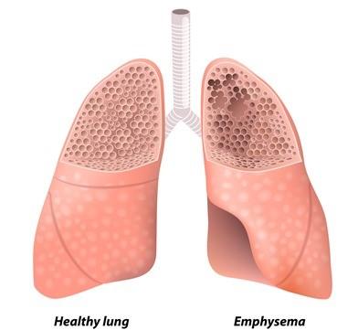 air pollution lungs