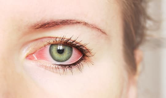 facts about dry eye